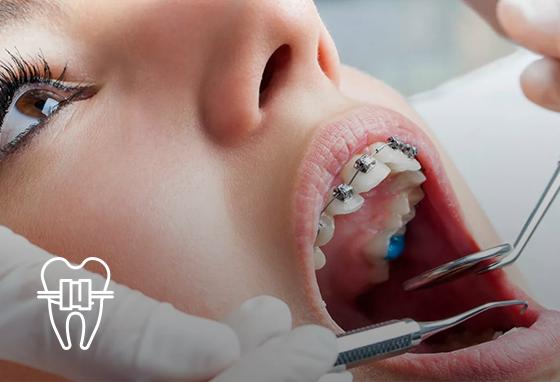 Ортодонтична стоматологія